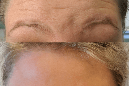 botox before and after richmond hill ga