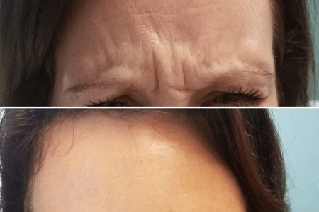 radiant skin botox injections