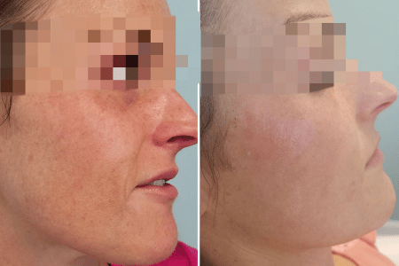 laser skin treatment before after
